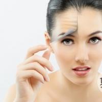4个方法给额头除皱 让脸部皱纹消失不见